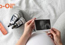 Bio Oil ulje protiv strija u trudnoci mamaklik.com