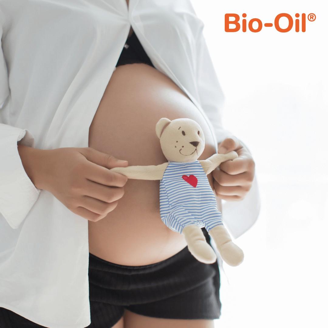 Ukoliko se tijelo širi brže od kože,ona puca i dolazi do pojave ožiljaka tokom njenog zarastanja – strija. Otkud strije u trudnoći i kako ih se riješiti i postoji li preventiva?